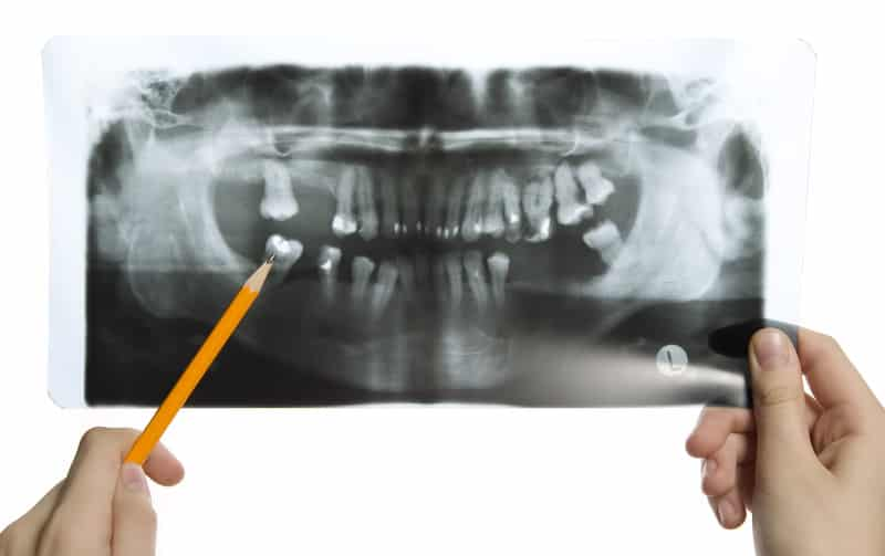 Are X-Rays Safe For My Teeth?