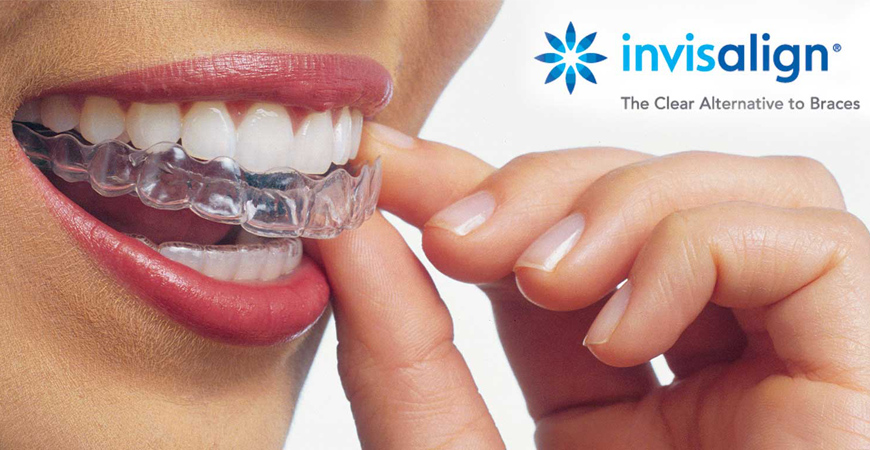 Invisalign London KY
