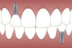 Dental Implant London, KY dentist