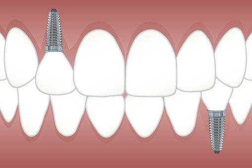September Celebration: Dental Implant Awareness Month